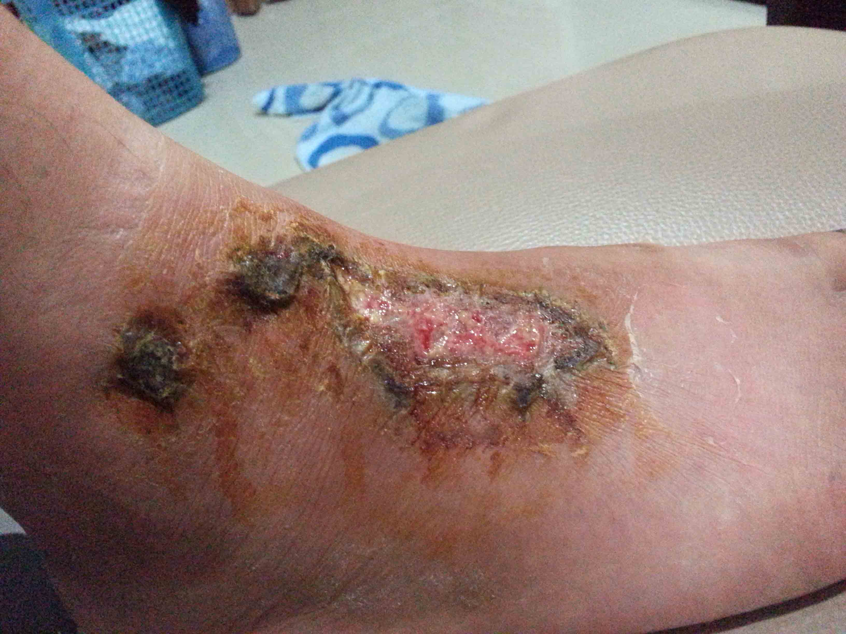 how to get a wound to scab